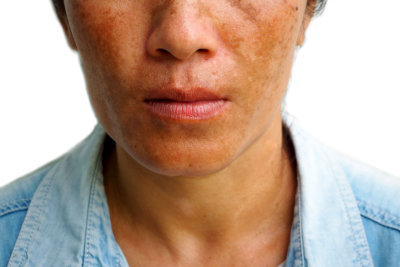 woman with skin disease
