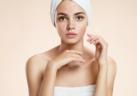 5 Myths About Acne You Need to Stop Believing